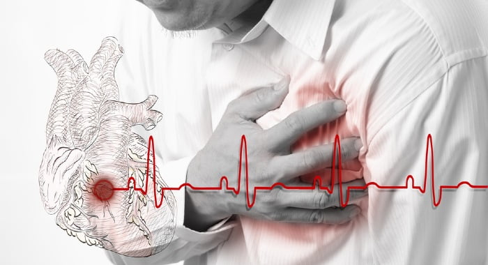 OSA can actually kill you through an heart attack, stroke or sudden death.